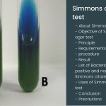 Simmons citrate agar test