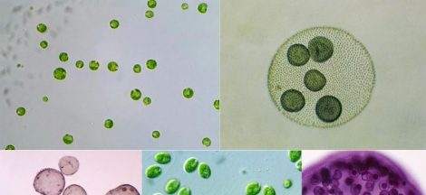 Study of Chlamydomonas and Volvox by using Whole mount