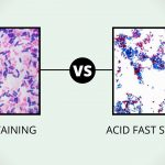 Comparison Between Gram Stain and Acid Fast