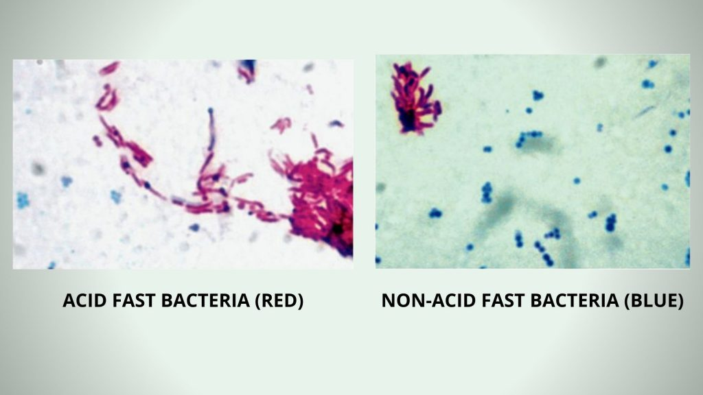 Kinyoun stain (Acid Fast Cold) Result