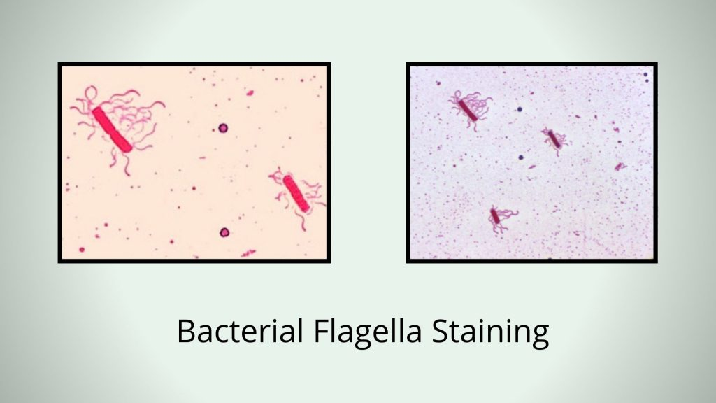 Bacterial Flagella Staining by Leifson Flagella Stain Method