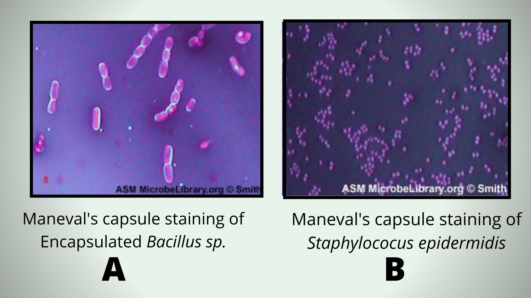 Maneval's capsule staining