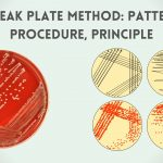 Streak Plate Method: Patterns, Procedure, Principle
