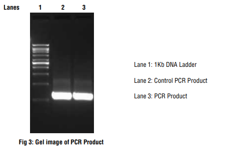 Gel electrophoresis to visualize the results of Polymerase chain reaction