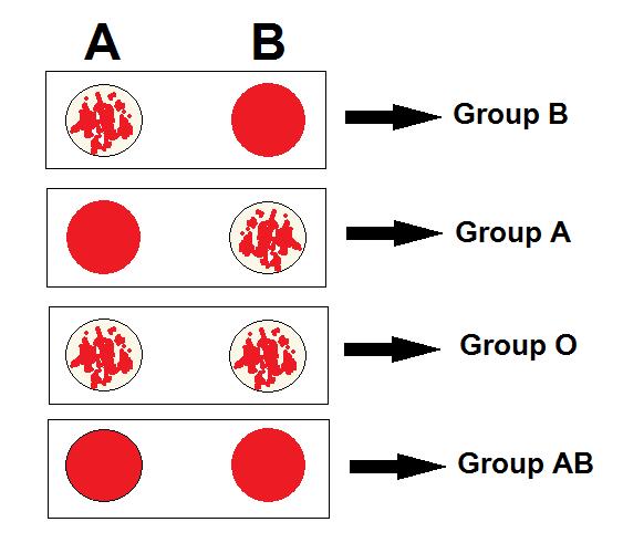 Reverse Blood Grouping Principle, Procedure, Result