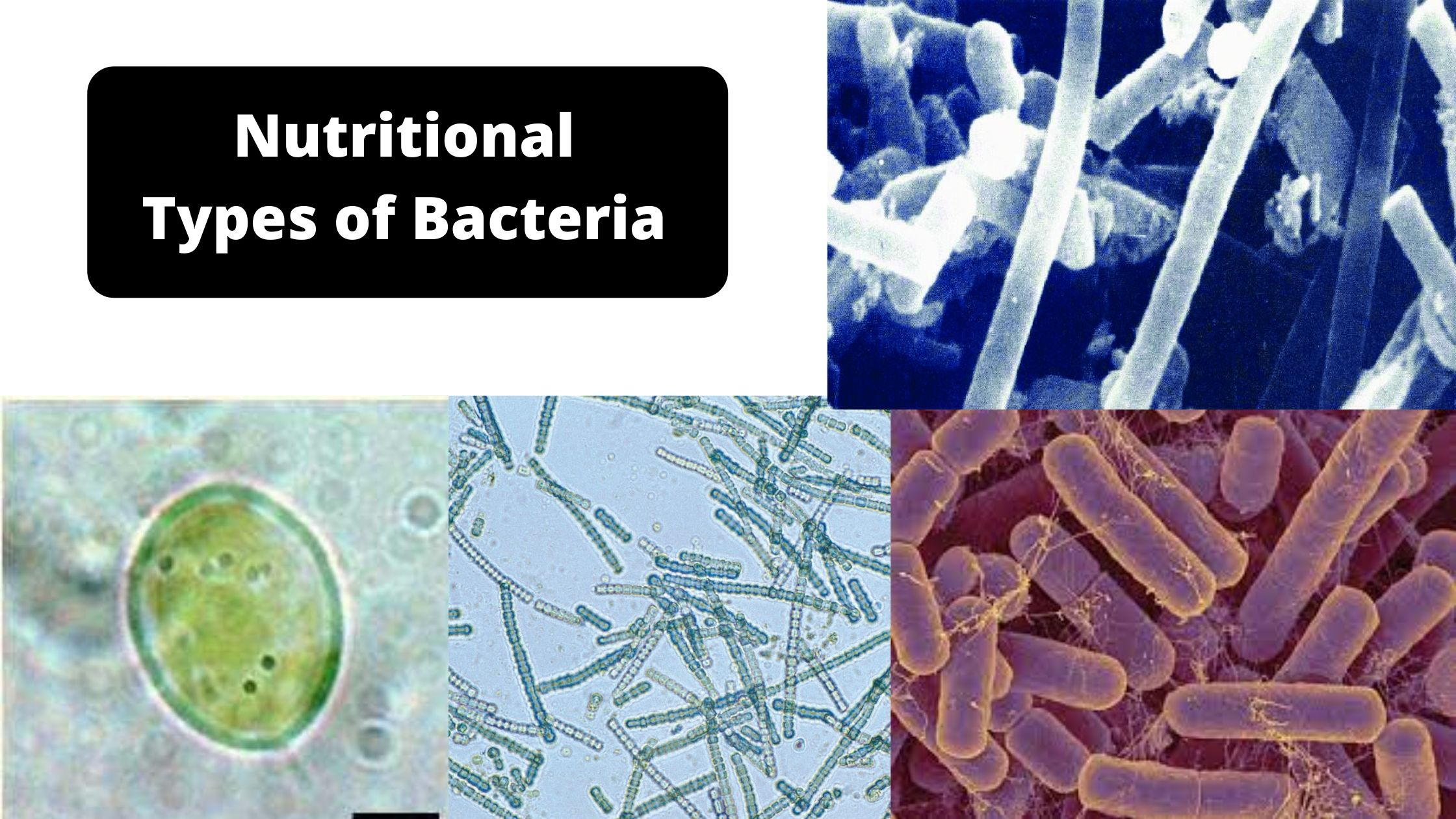 Nutritional types of bacteria: Classification of bacteria based on Nutritional Requirement
